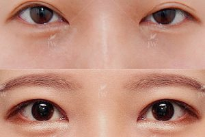 Natural Double Eyelid